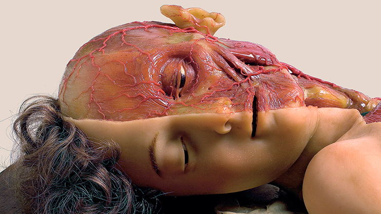 Head and body of a young girl with muscles and blood vessels