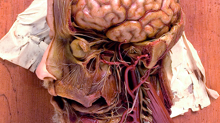 Man's head and neck showing the superficial vessels of the brain, the divisions of the trigeminal nerve and the hypoglossal nerve